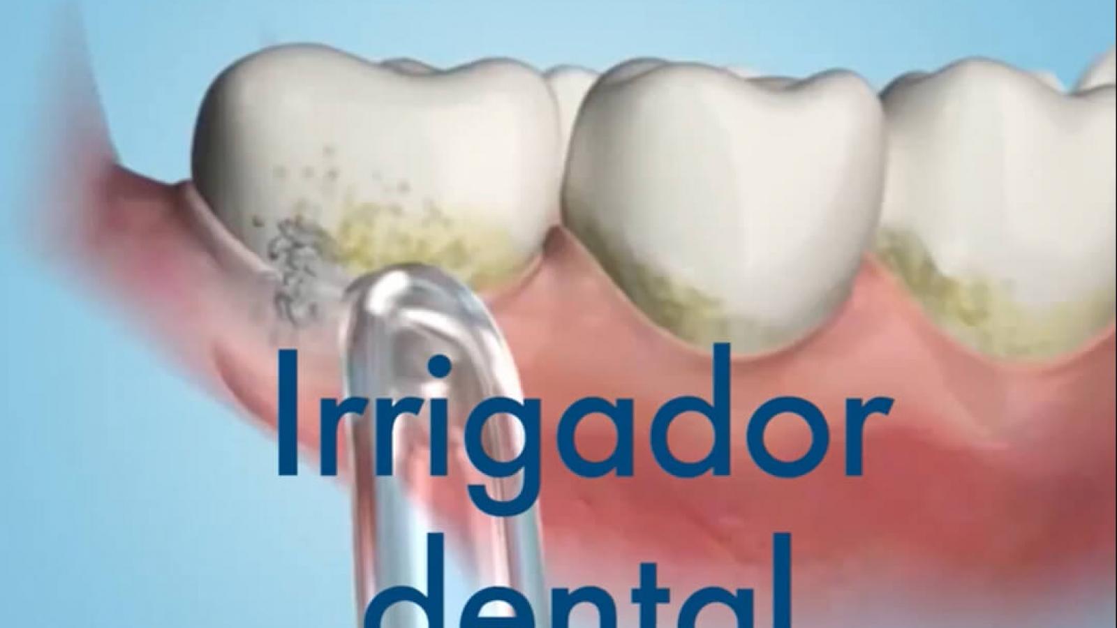 Post irrigador dental