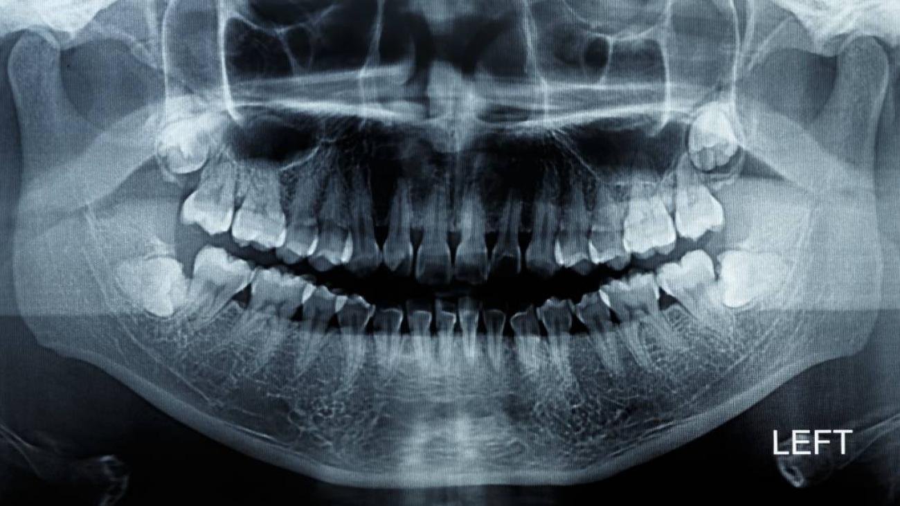 enfermedades dentales- low