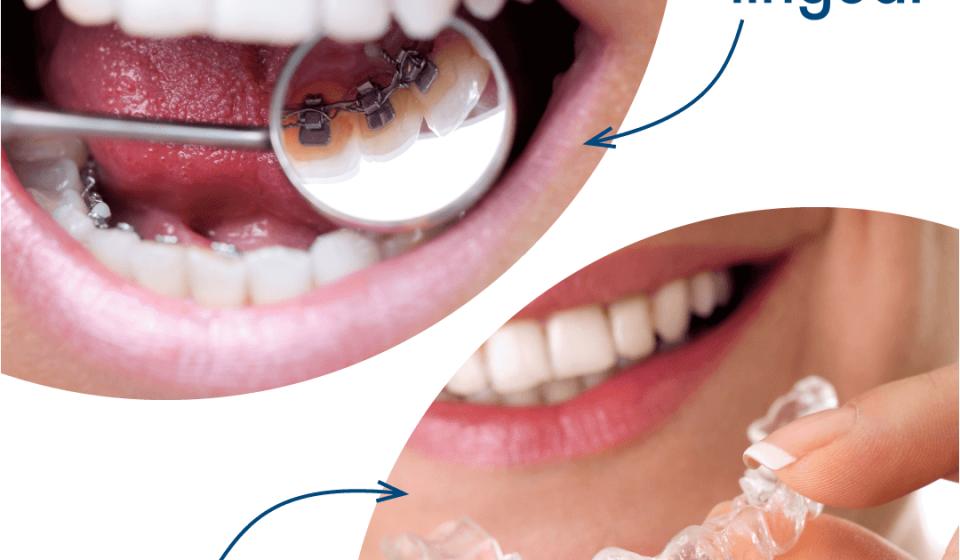 ortodoncia lingual- low